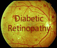 diabetes retinopathy