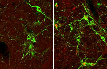 Arka beyindeki nöronların mikroskop görüntüleri, nöronların hızlı hamleli (hareket eden) hipoglisemi (sağda), tarafından aktif hale getirilirken yavaş hamleli hipoglisemi (solda) süresince beyinde çok az aktivasyon-hareket gerçekleştiğini göstermektedir. Nöronlar yeşil gösterilmiştir.