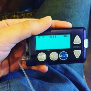 180 ünitelik rezervuarlı insülin pompası