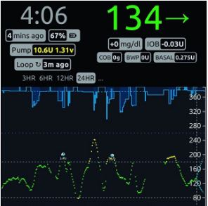 homemade-artificial-pancreas