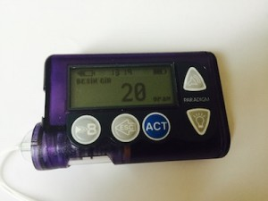 insulin pump1